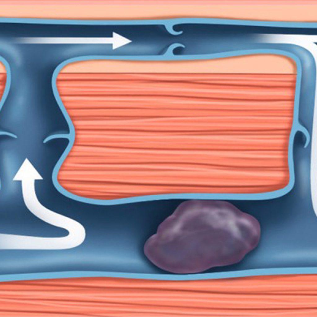 Mas o que exatamente é uma trombose? Por que é perigoso e como pode ser tratado?